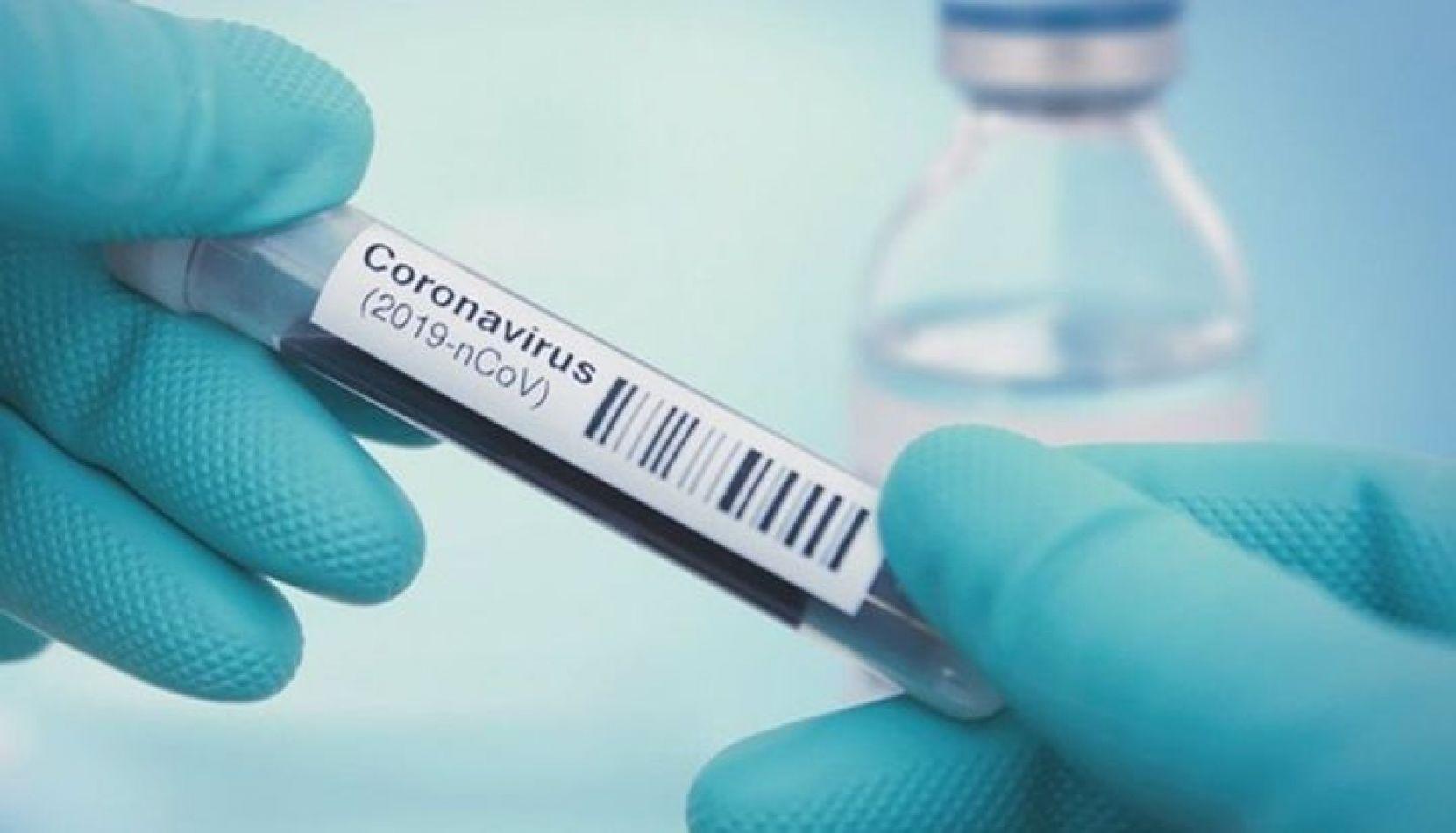 Hoy se notificaron 415 nuevos casos de coronavirus en Salta